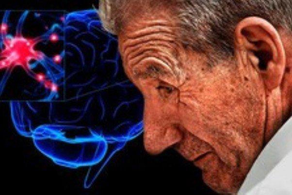 بیش فعالی ریسک ابتلا به پارکینسون را افزایش می دهد