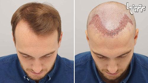 کاشت مو، قیمت و بهترین روش ها