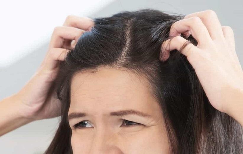 14 علت اصلی بروز زخم پوست سر چیست ؟
